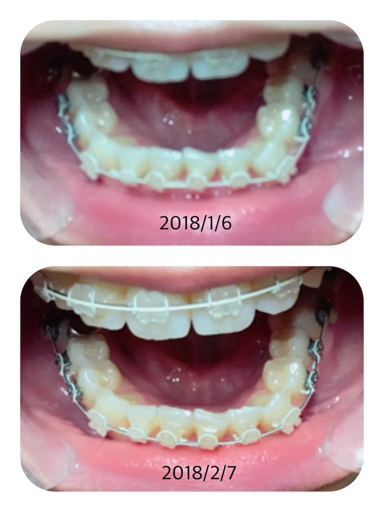 f:id:braces31:20180207220812j:image