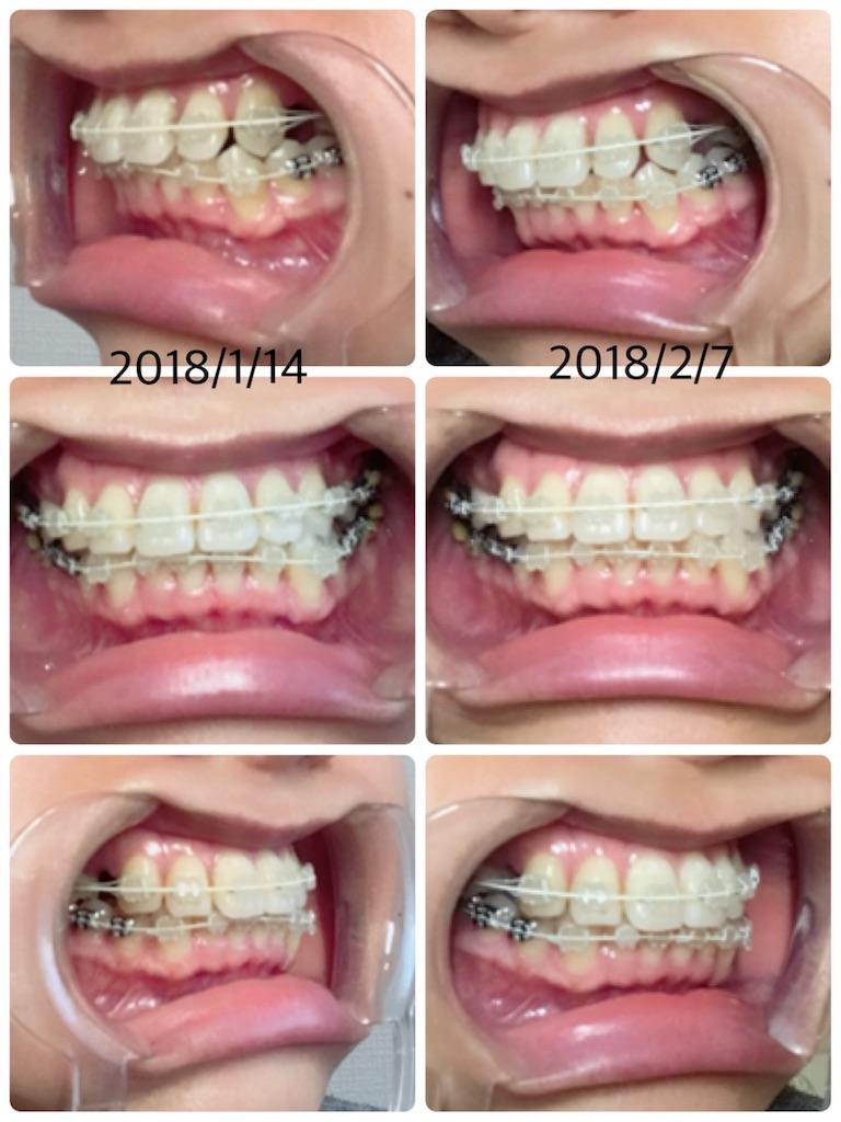 f:id:braces31:20180207221226j:image