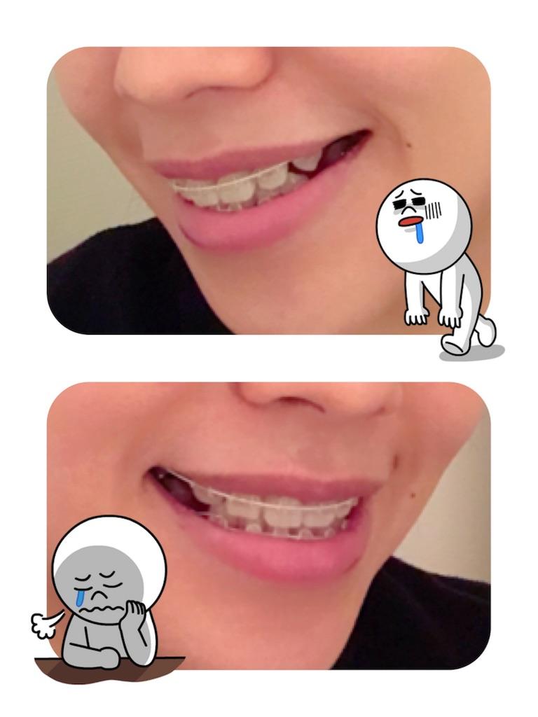 f:id:braces31:20180211003905j:image