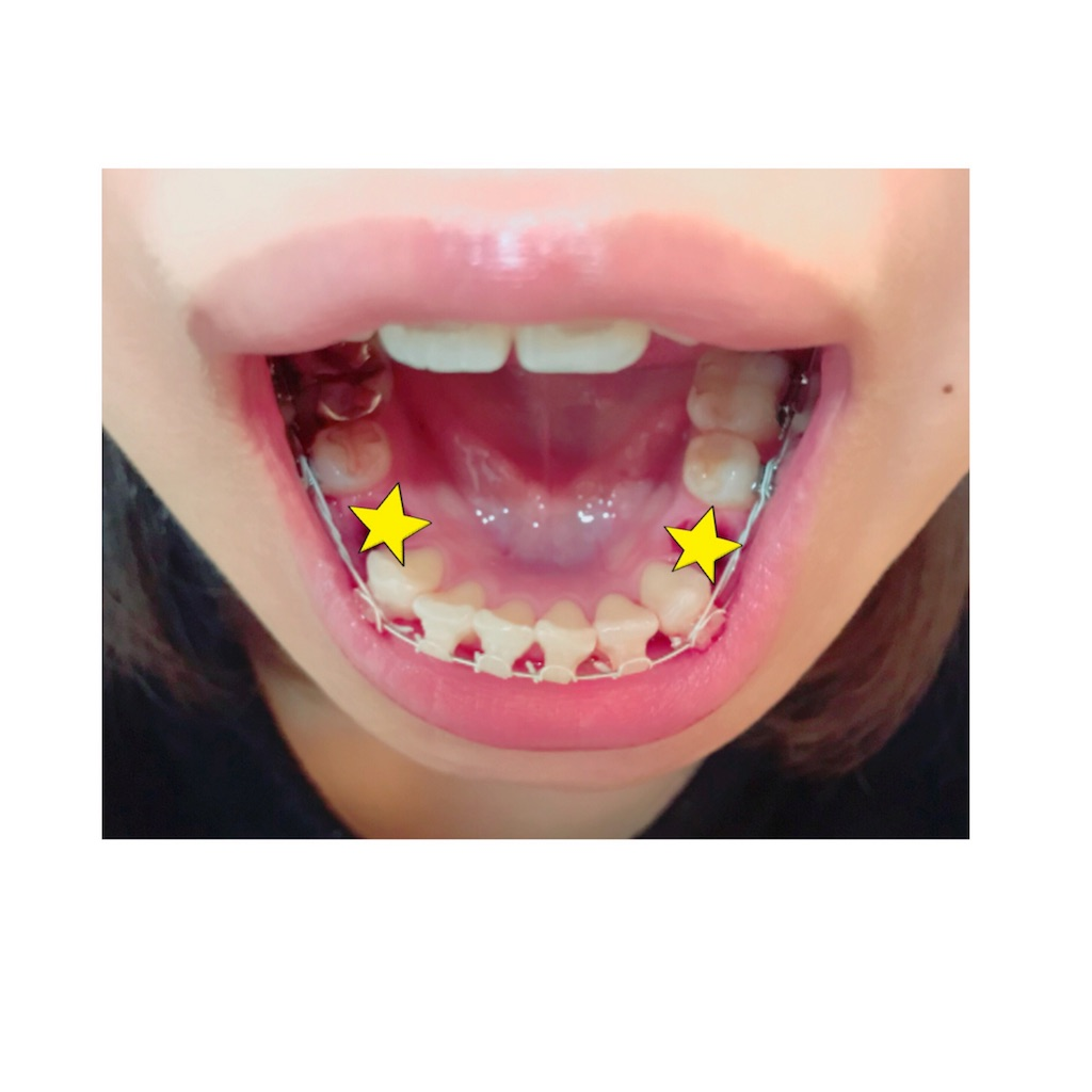 f:id:braces31:20180211012652j:image