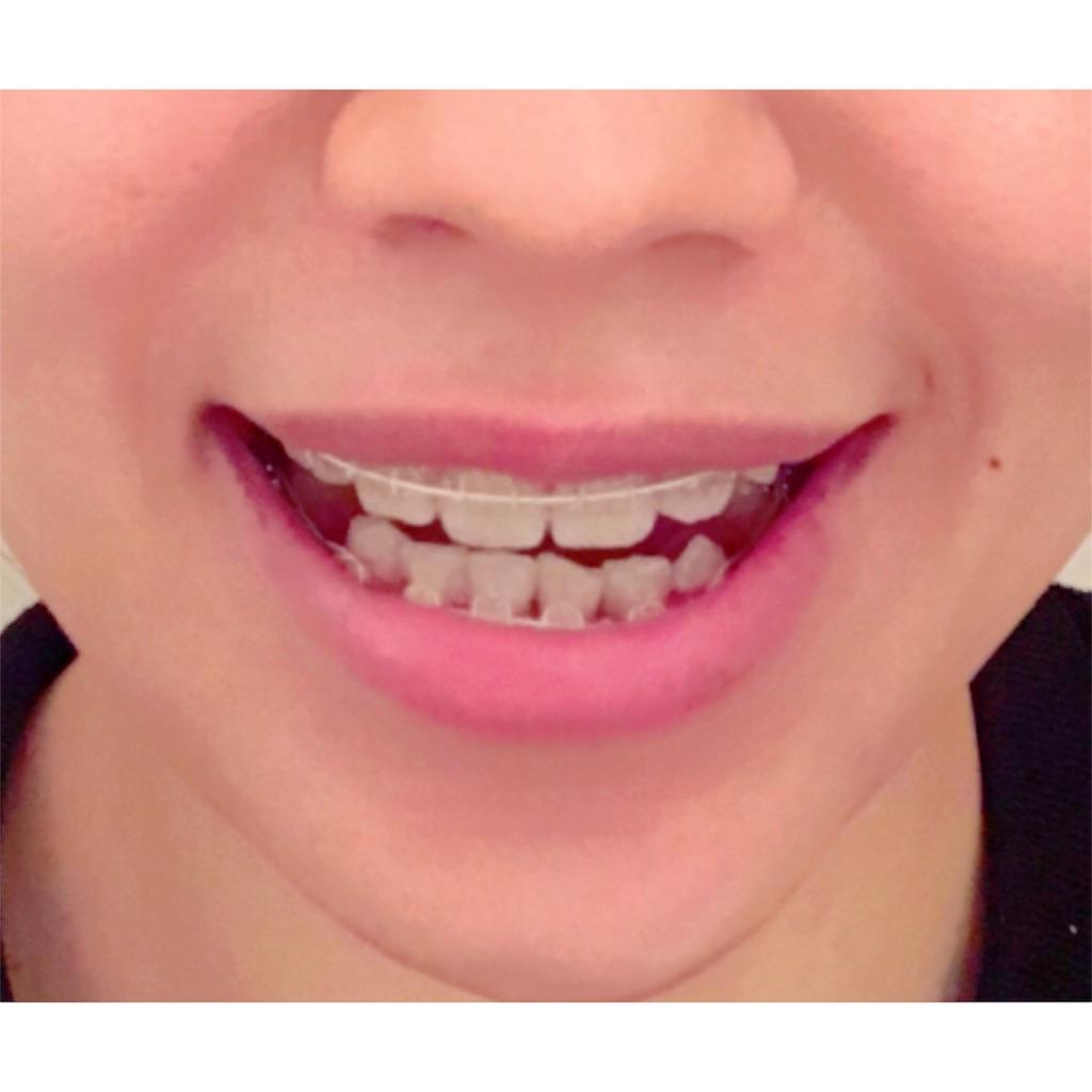 f:id:braces31:20180211012717j:image