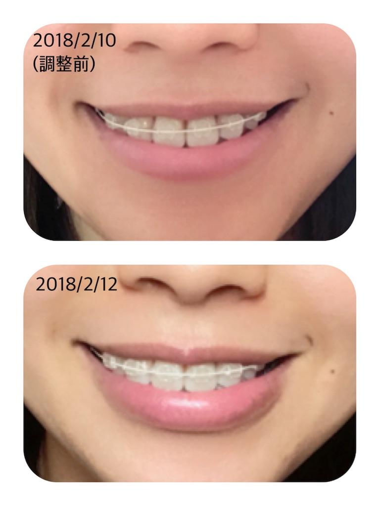 f:id:braces31:20180213001823j:image