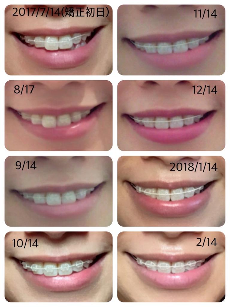 f:id:braces31:20180215003908j:image