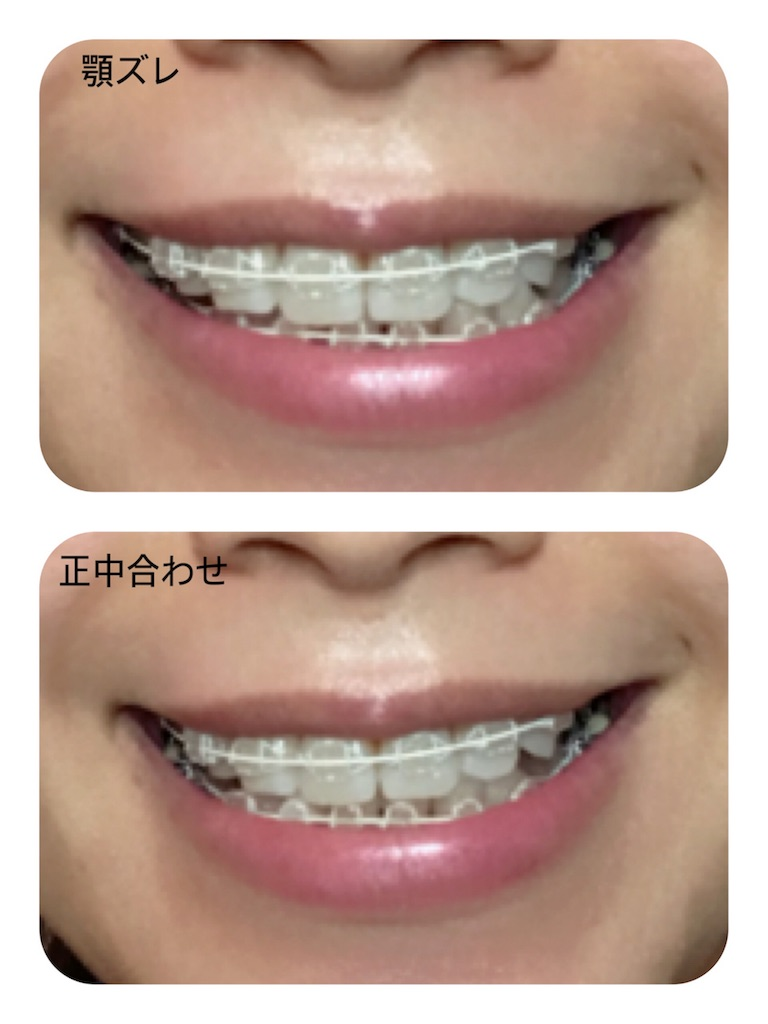 f:id:braces31:20180217210317j:image