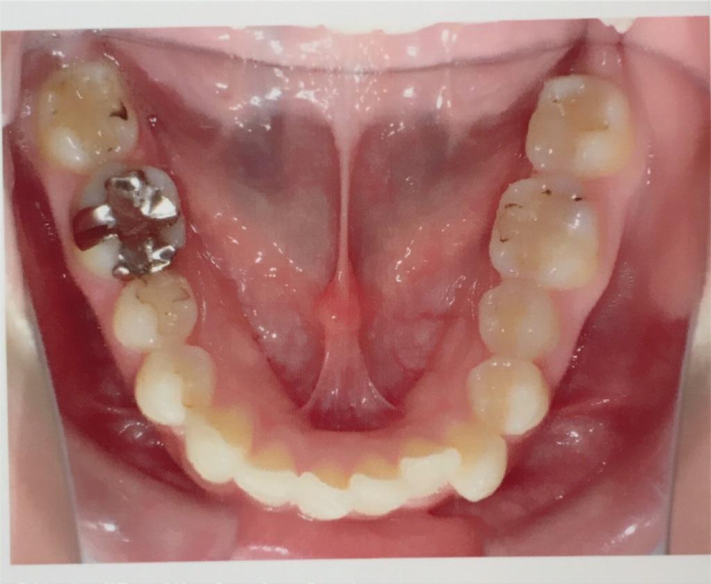 f:id:braces31:20180217212358j:image