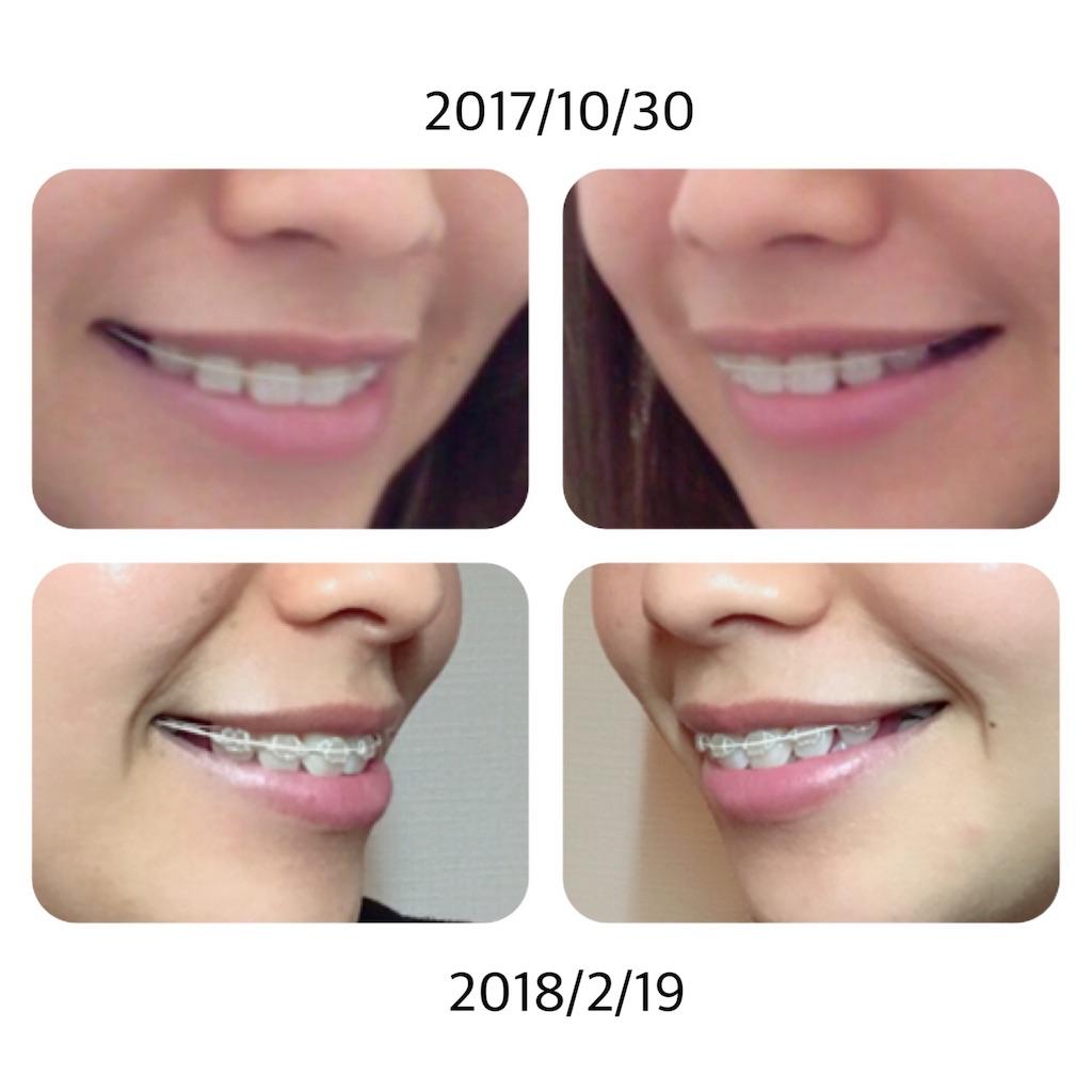 f:id:braces31:20180219222812j:image