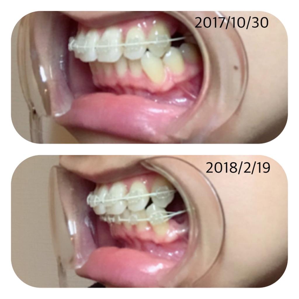 f:id:braces31:20180219223201j:image
