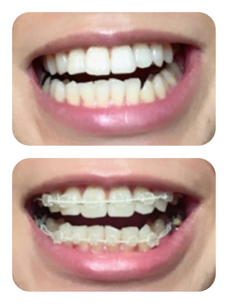 f:id:braces31:20180225004236j:image