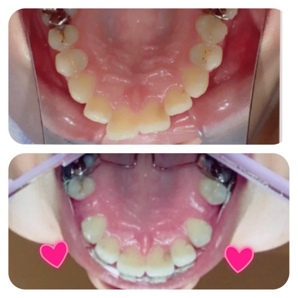 f:id:braces31:20180311212805j:image