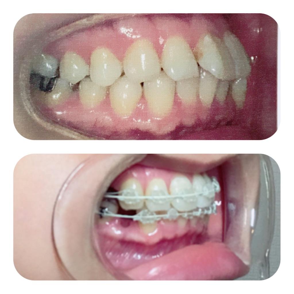 f:id:braces31:20180311212958j:image