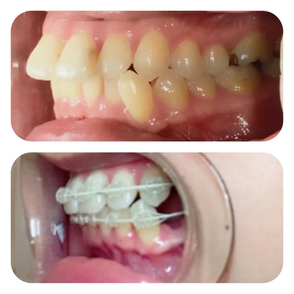 f:id:braces31:20180311213034j:image