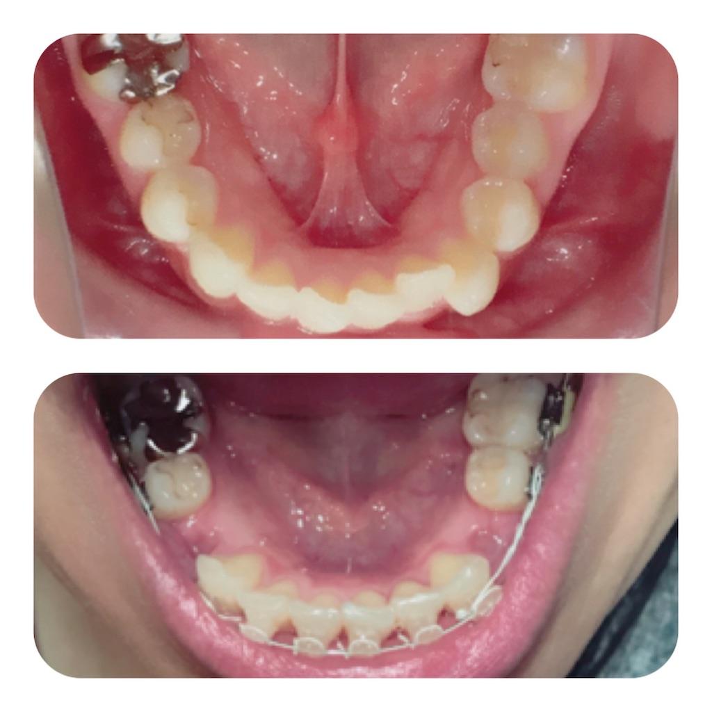 f:id:braces31:20180311213057j:image