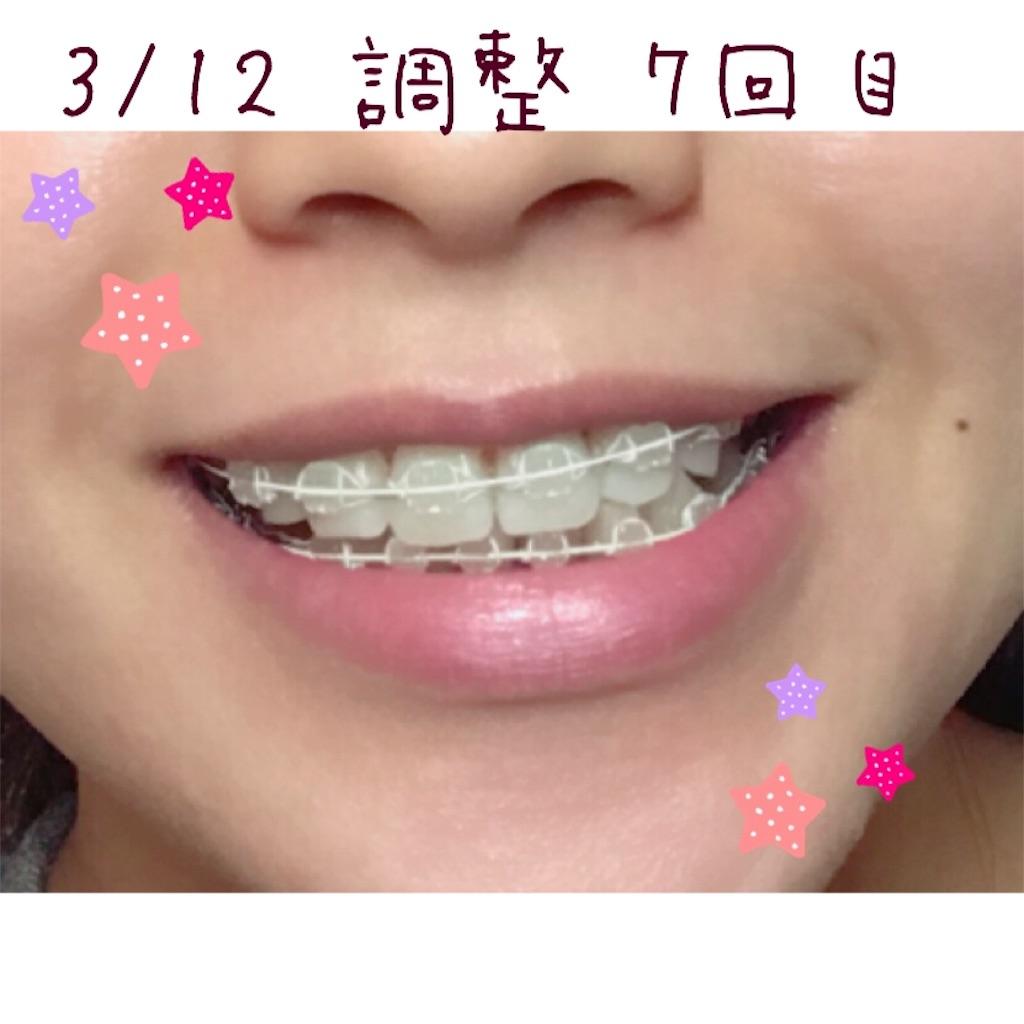 f:id:braces31:20180312225216j:image