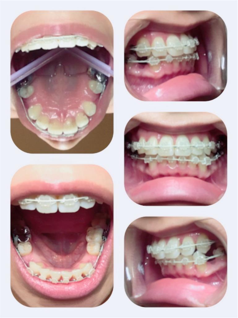 f:id:braces31:20180312225224j:image