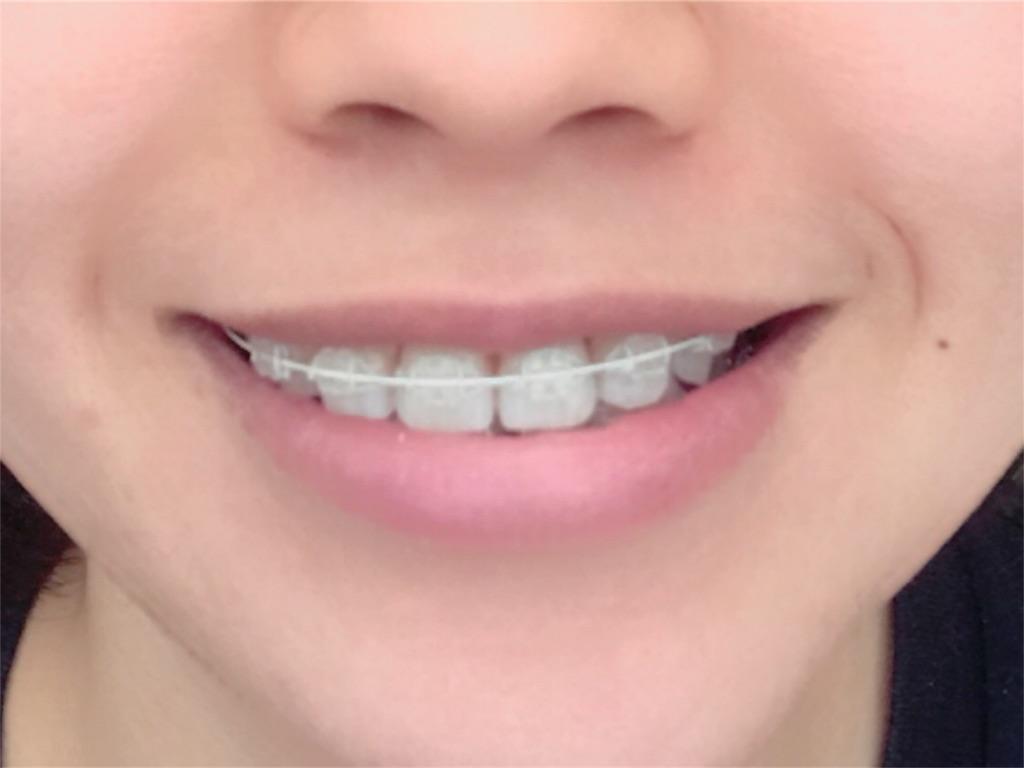 f:id:braces31:20180401131443j:image