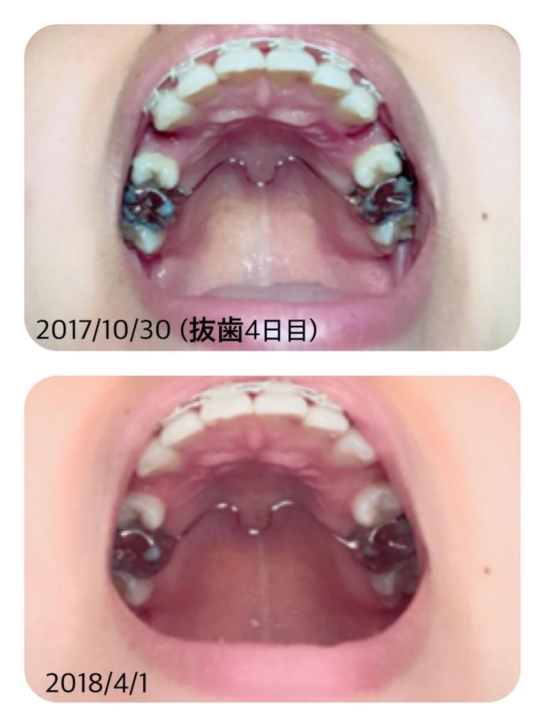 f:id:braces31:20180401131701j:image