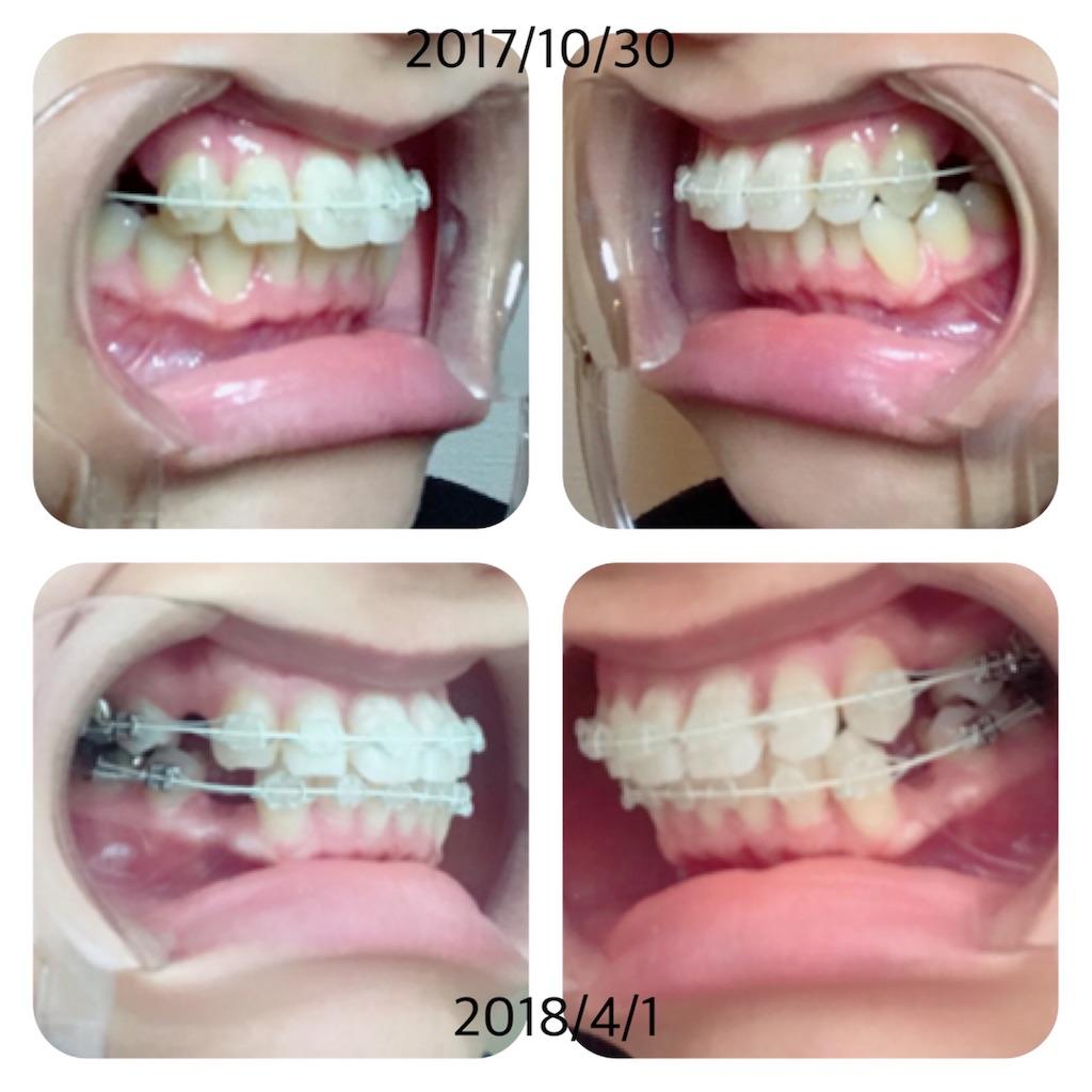 f:id:braces31:20180401131747j:image