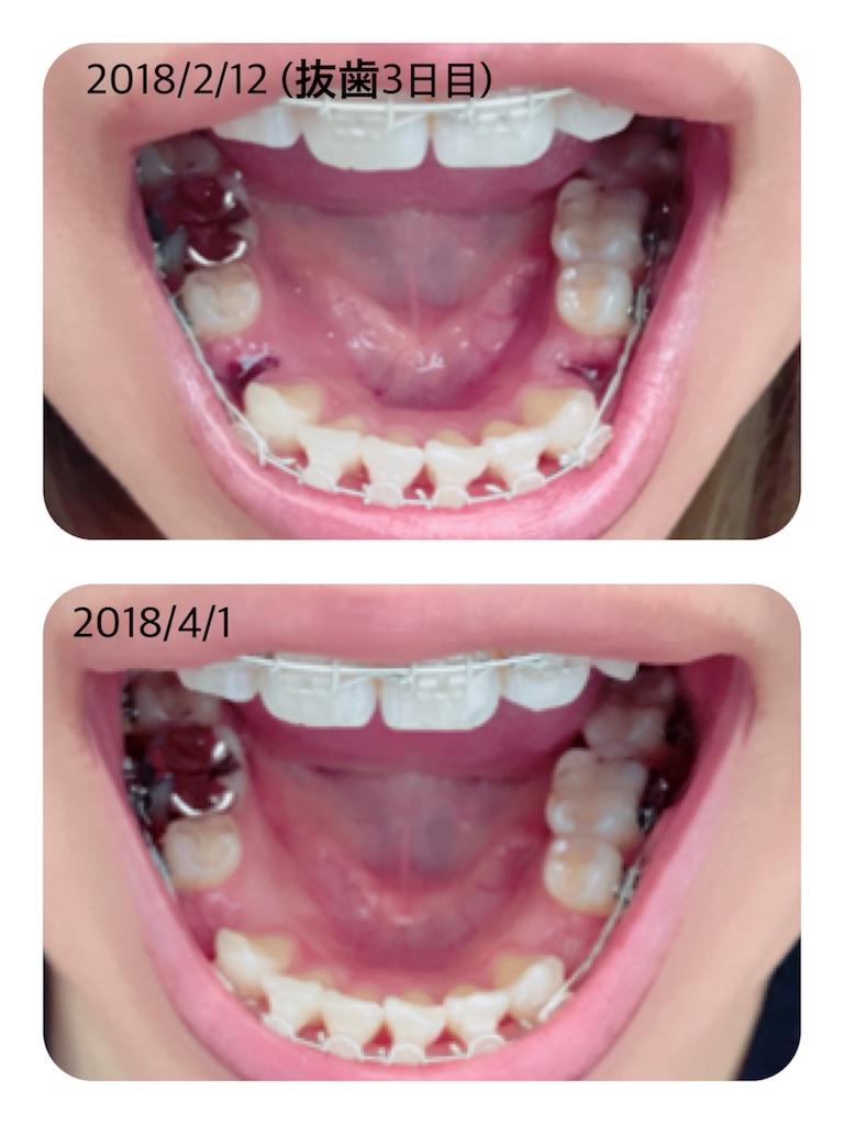 f:id:braces31:20180401132559j:image