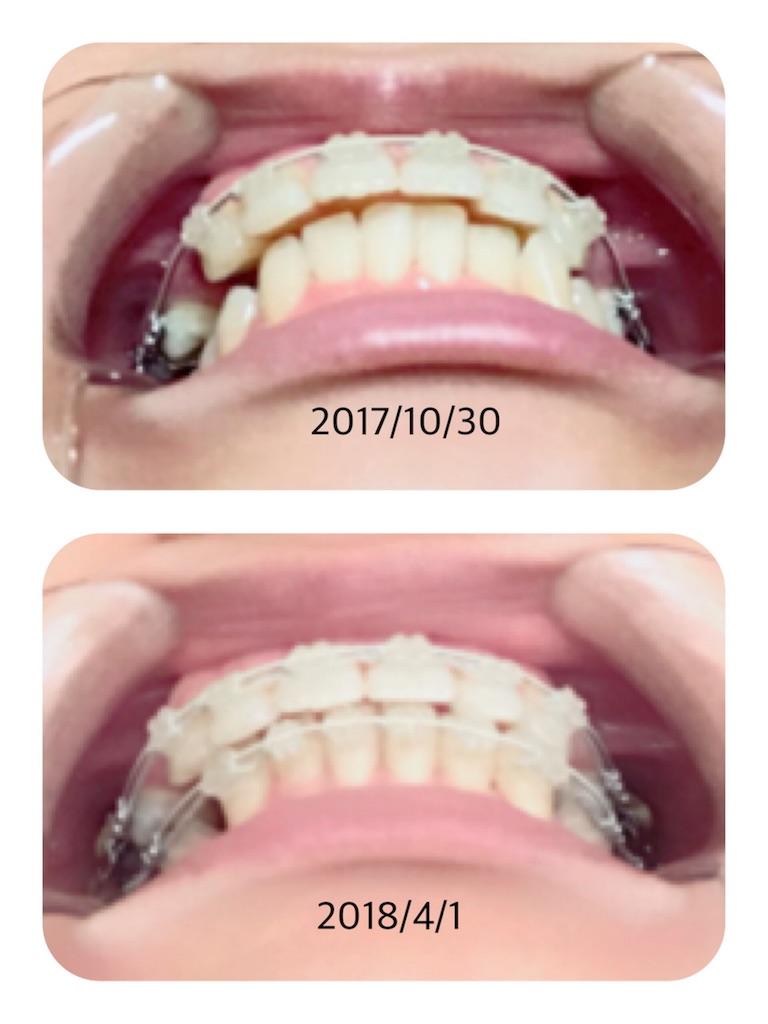 f:id:braces31:20180401132821j:image