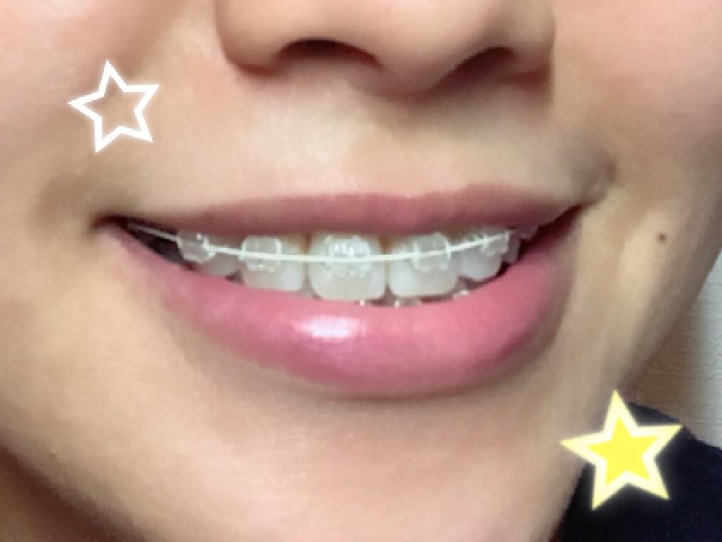 f:id:braces31:20180412221132j:image
