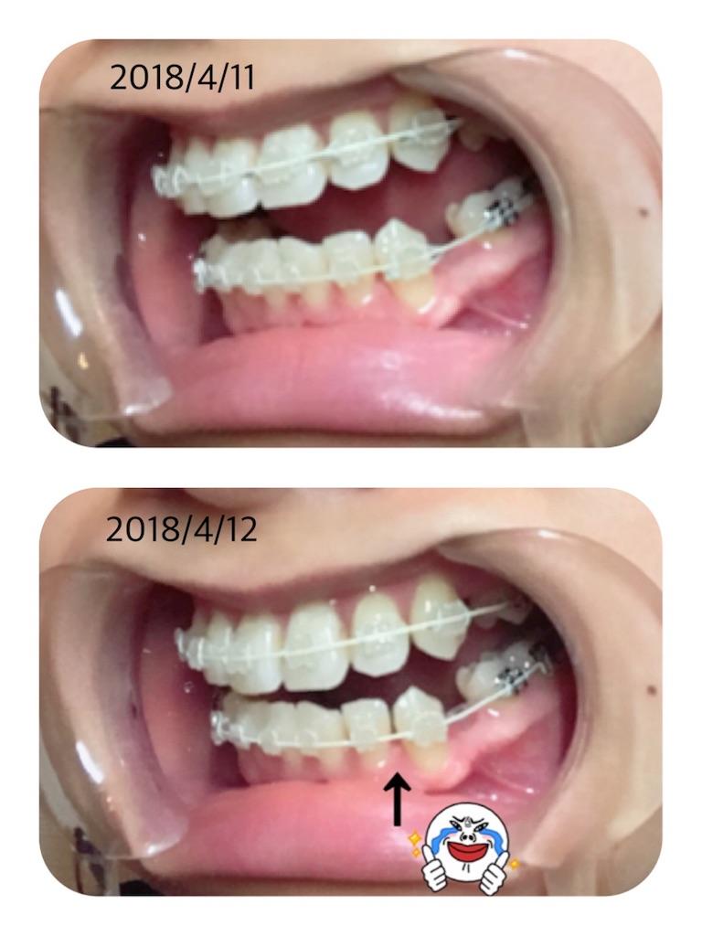 f:id:braces31:20180412221904j:image