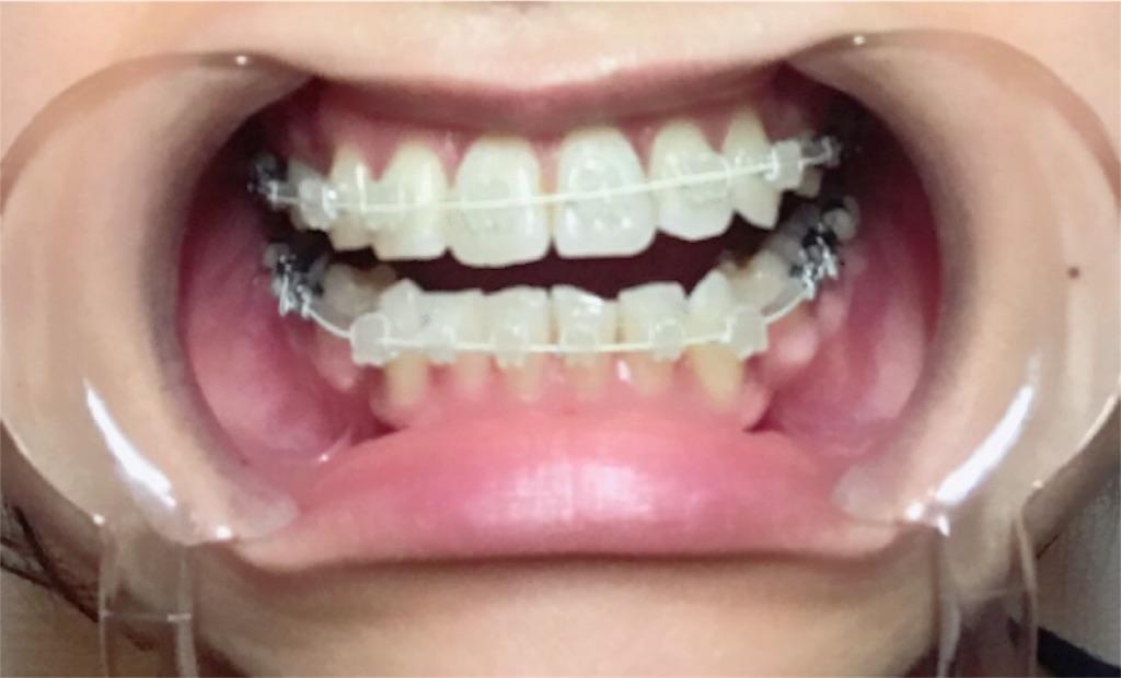 f:id:braces31:20180412223205j:image