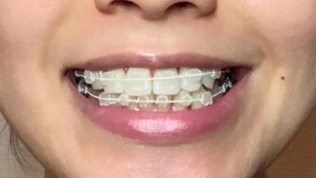f:id:braces31:20180415221455j:image