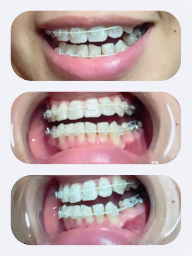f:id:braces31:20180415221653j:image