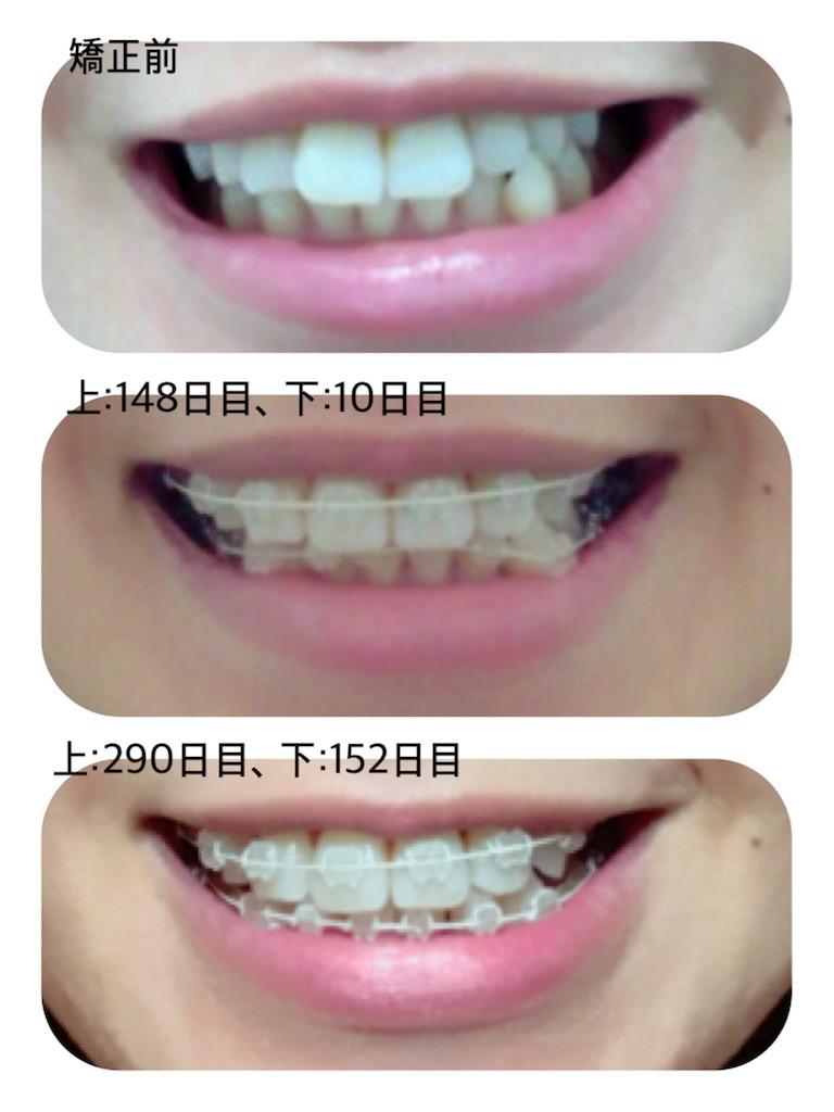 f:id:braces31:20180429234010j:image