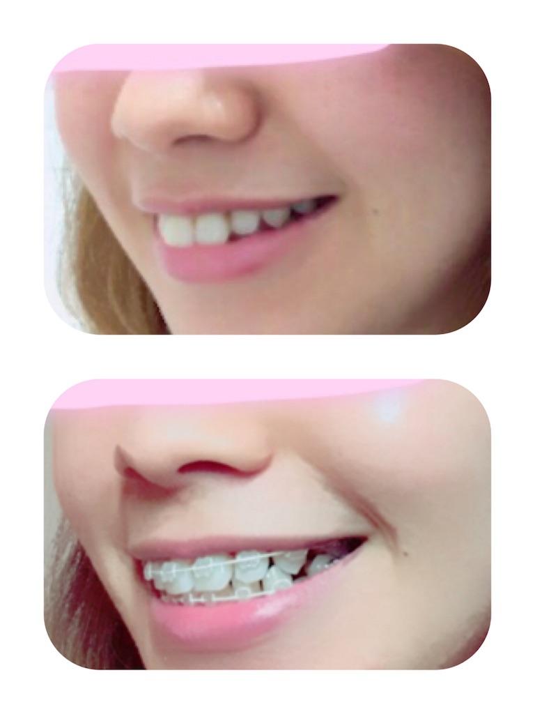 f:id:braces31:20180429234406j:image
