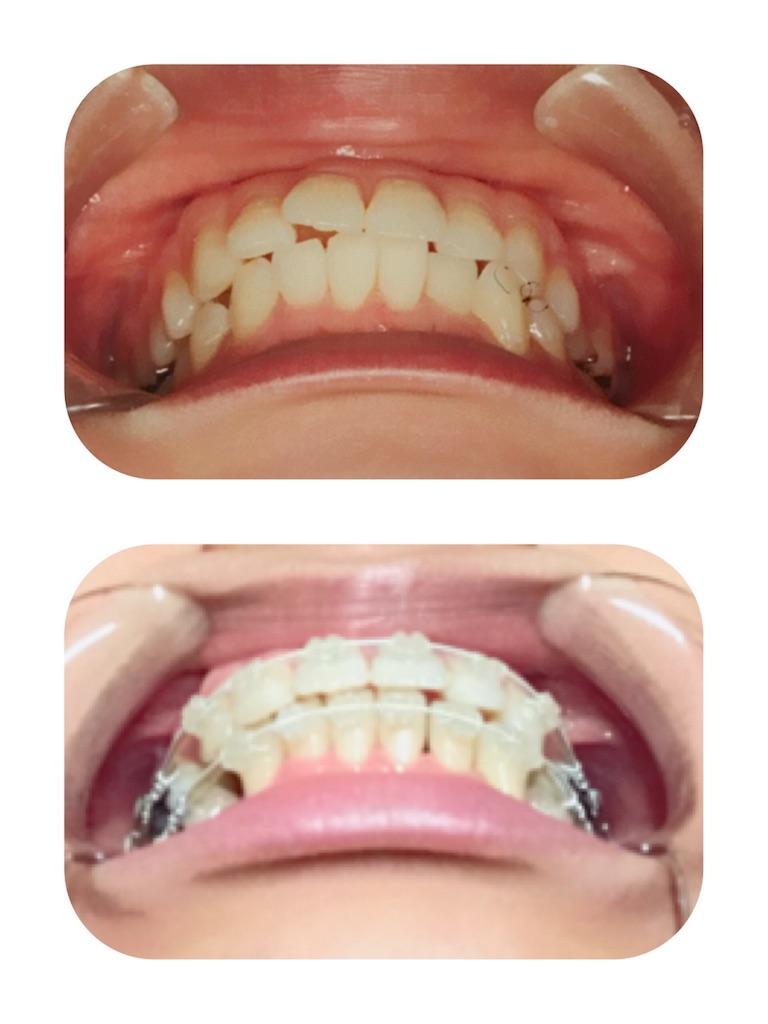 f:id:braces31:20180429234935j:image