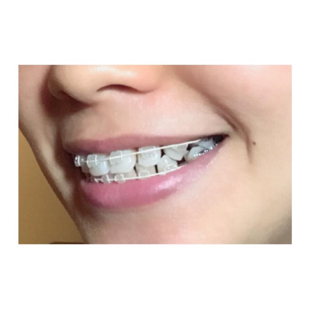 f:id:braces31:20180507220424j:image