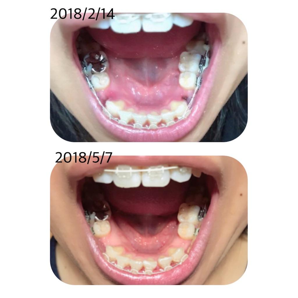 f:id:braces31:20180507220650j:image