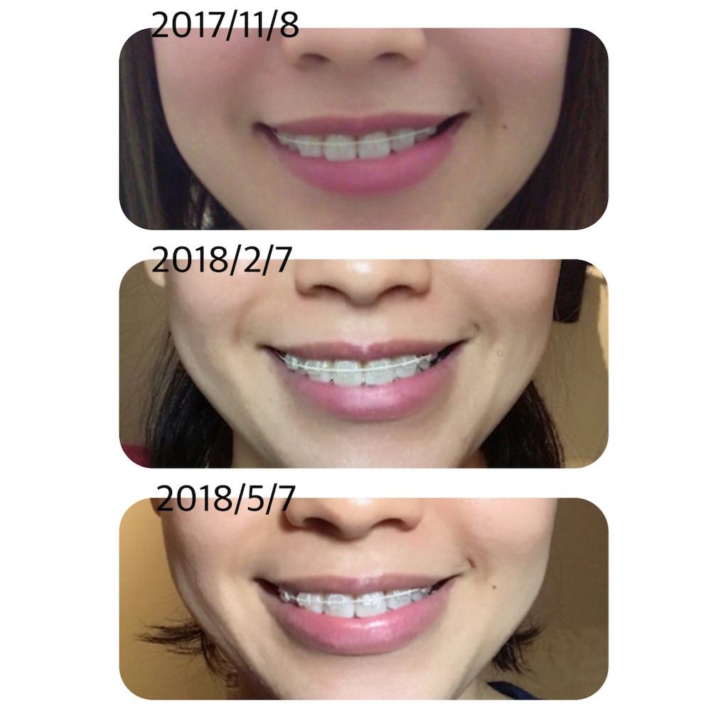 f:id:braces31:20180507220904j:image