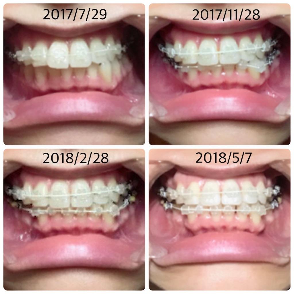 f:id:braces31:20180507221023j:image