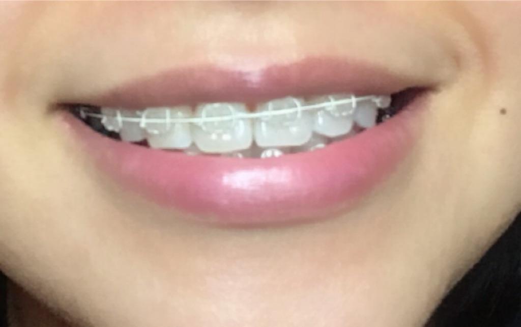 f:id:braces31:20180514234203j:image