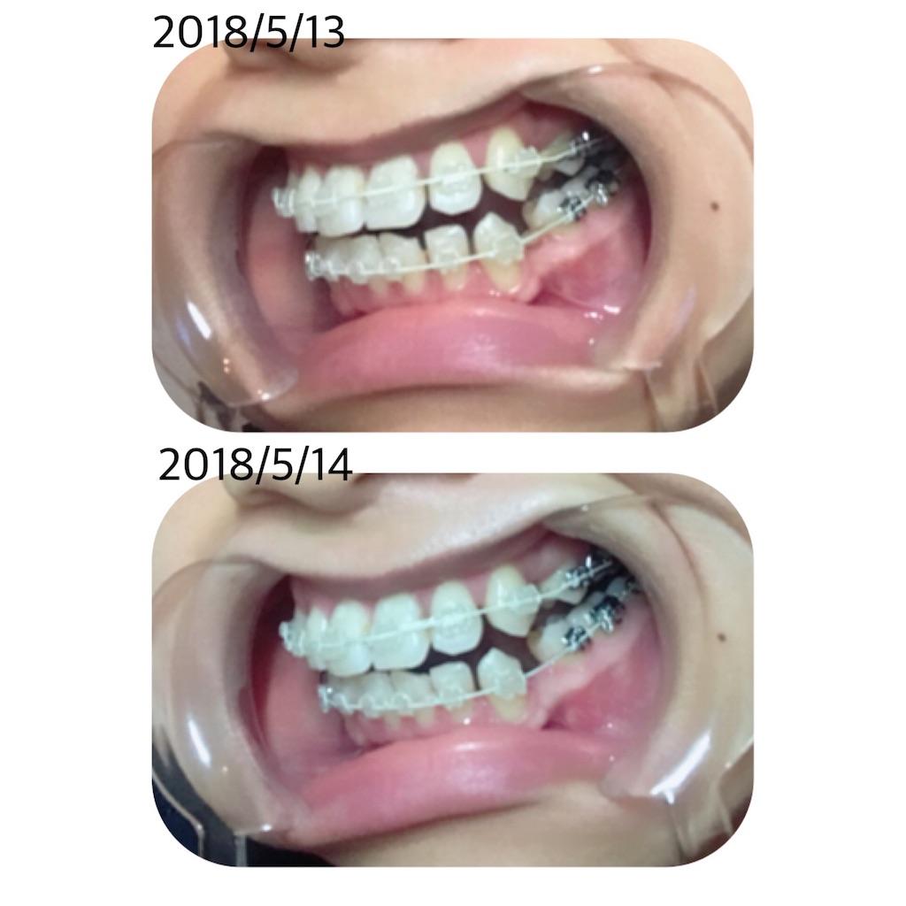 f:id:braces31:20180514234558j:image