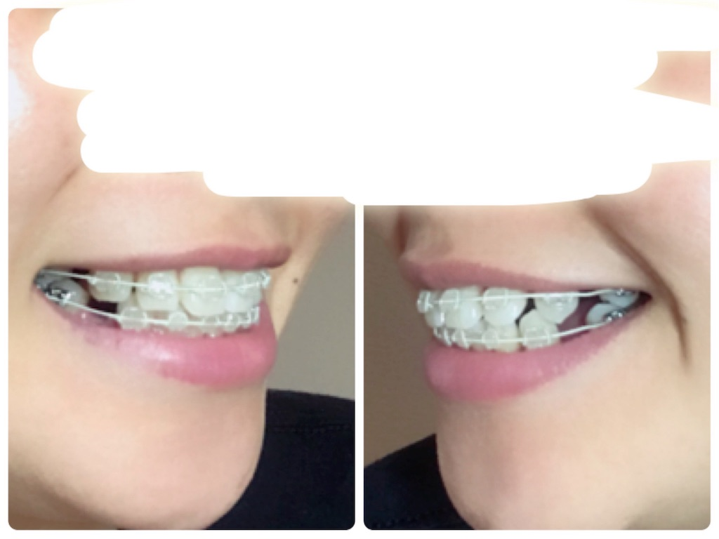 f:id:braces31:20180514234703j:image