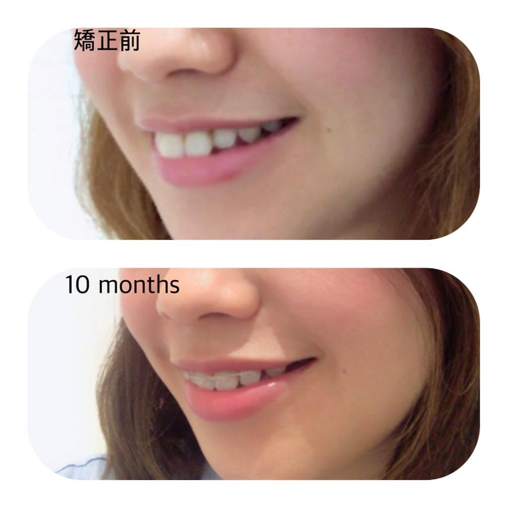 f:id:braces31:20180515213745j:image