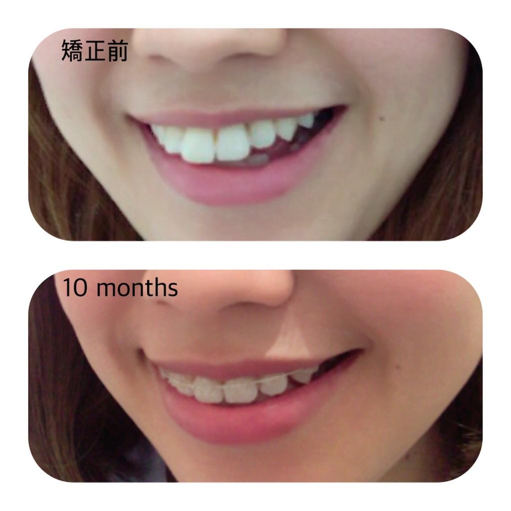 f:id:braces31:20180515213944j:image