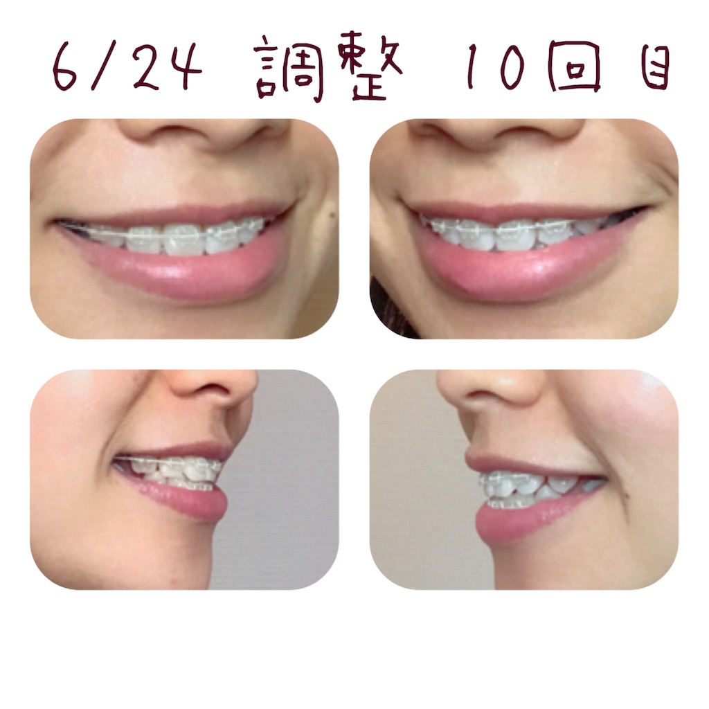 f:id:braces31:20180626233154j:image