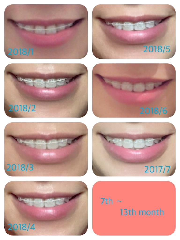 f:id:braces31:20180724010024j:image