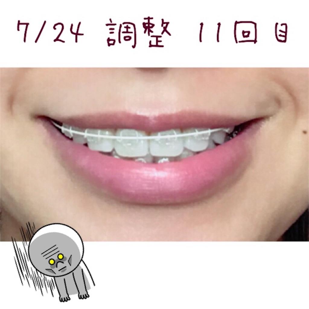 f:id:braces31:20180725003553j:image