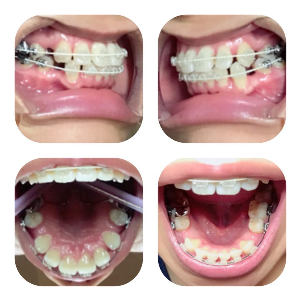 f:id:braces31:20180725003619j:image