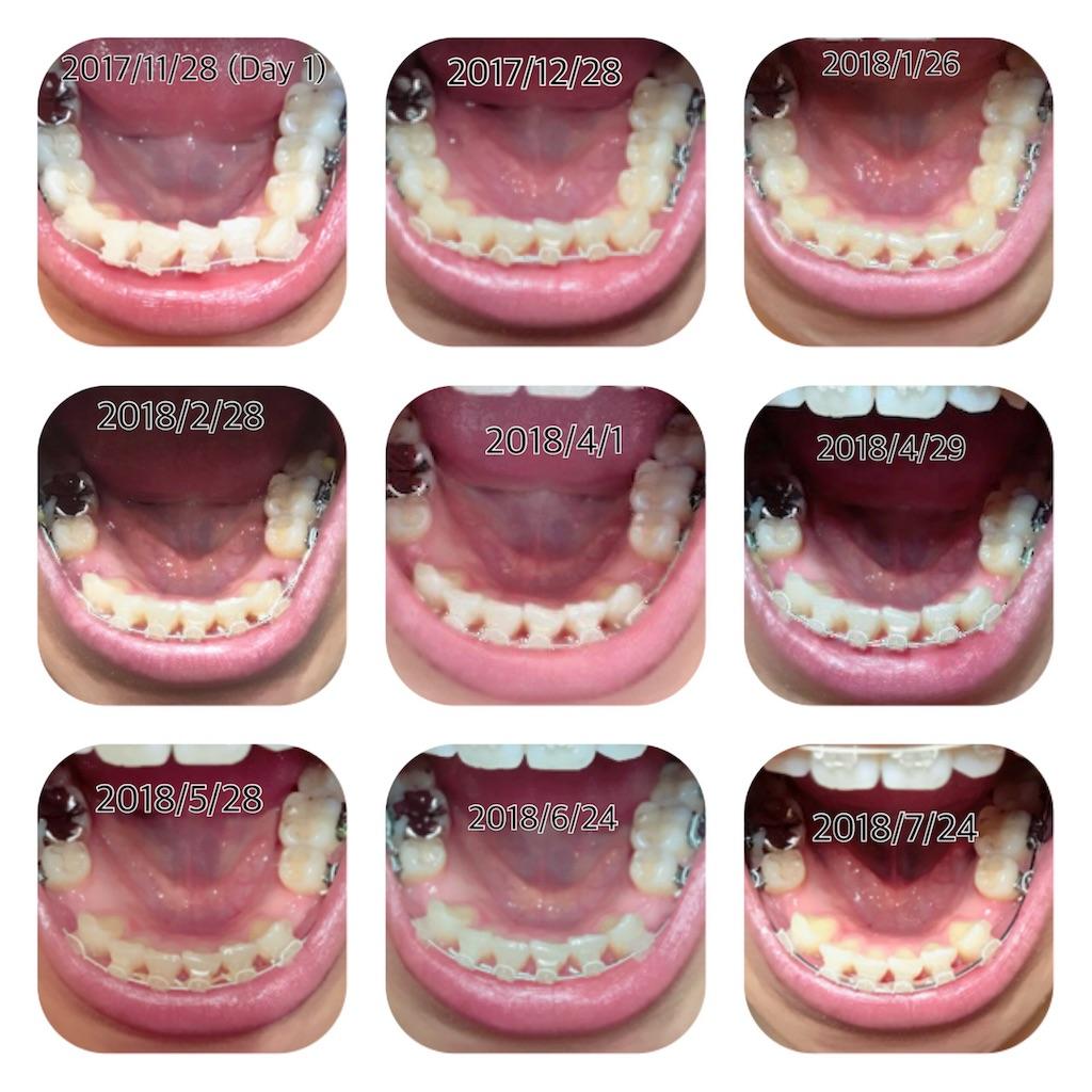 f:id:braces31:20180725003709j:image