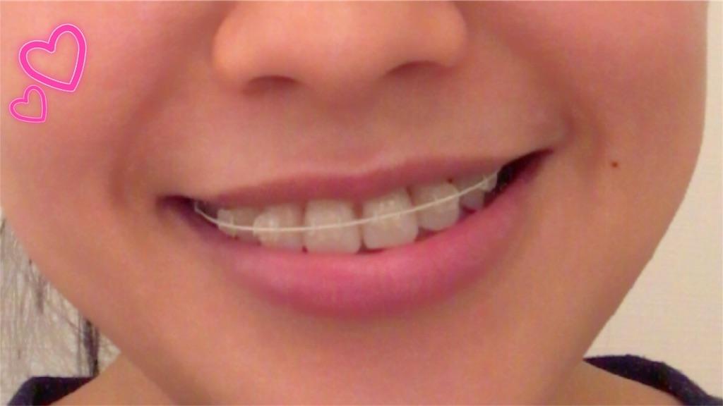 f:id:braces31:20180803230243j:image