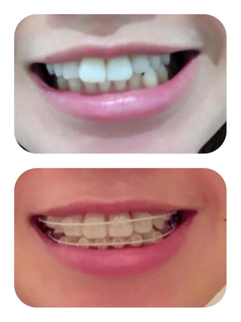 f:id:braces31:20180803231407j:image