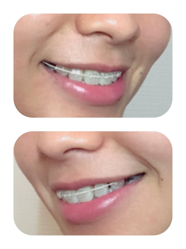 f:id:braces31:20180826230234j:image