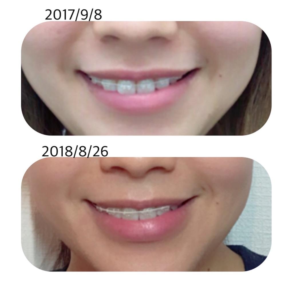 f:id:braces31:20180826230525j:image