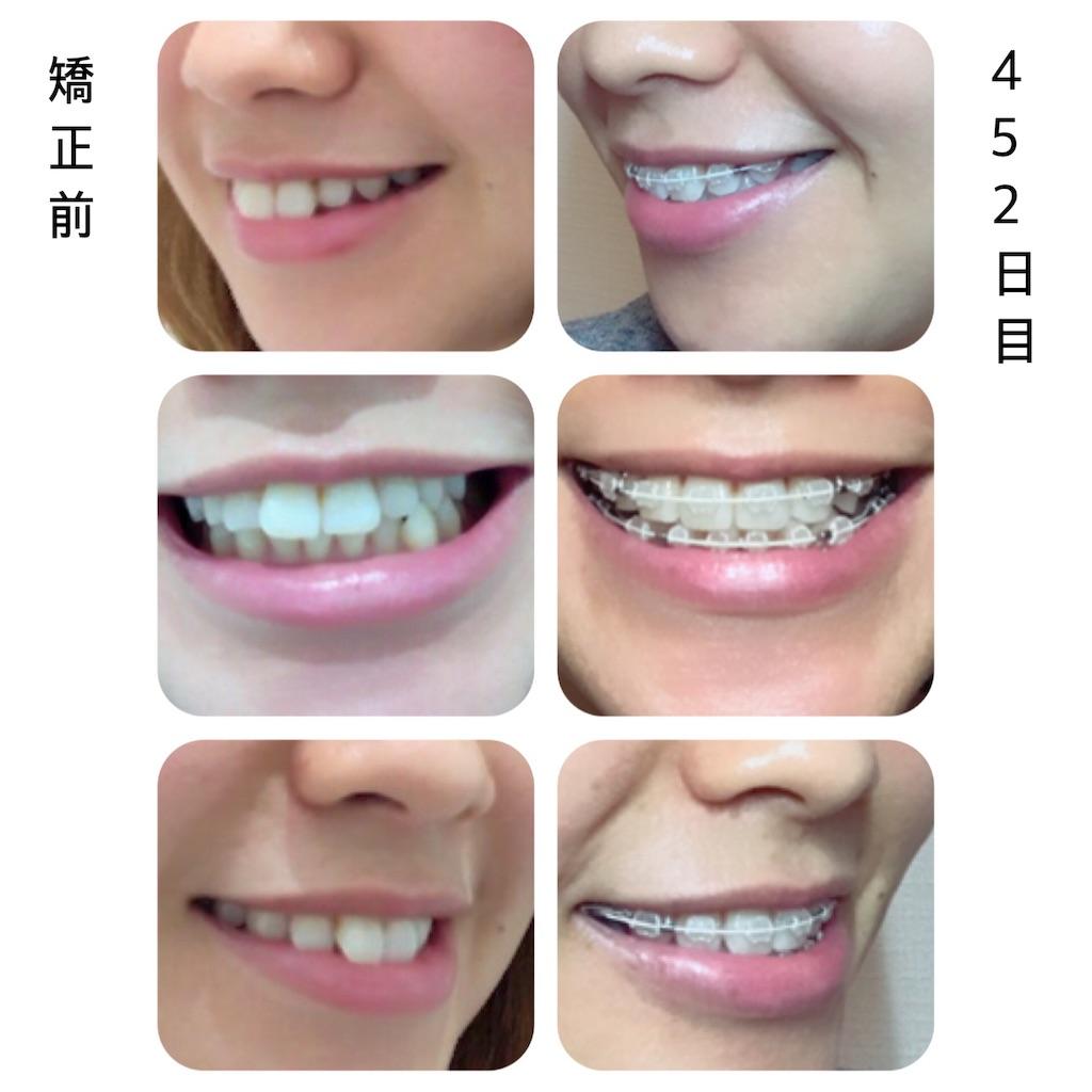 f:id:braces31:20181008214702j:image